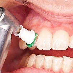 جرمگيري دندان كودكان در كرج